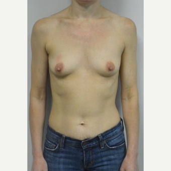 45-54 year old woman treated with Breast Implants who wants a natural look before 3604022