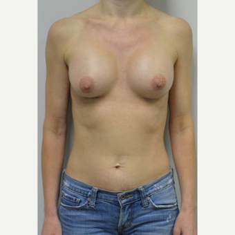 45-54 year old woman treated with Breast Implants who wants a natural look after 3604022