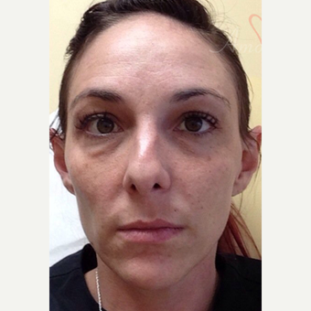 25-34 year old woman treated with Botox before 3504950