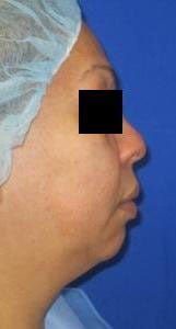 Chin Liposuction before 3141656