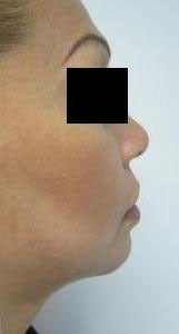 Chin Liposuction after 3141656