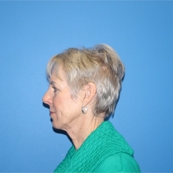 65-74 year old woman treated with Facelift before 3281290