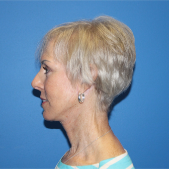 65-74 year old woman treated with Facelift after 3281290