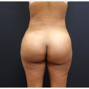 25-34 year old woman treated with Liposculpture after 3731888