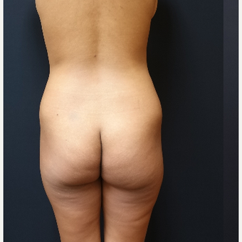 25-34 year old woman treated with Liposculpture before 3731888