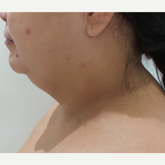 25-34 year old woman treated with Laser Liposuction before 3001976