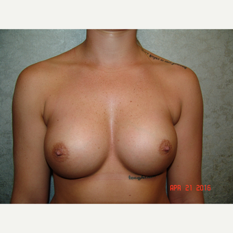 18-24 year old woman treated with Breast Augmentation after 2841745