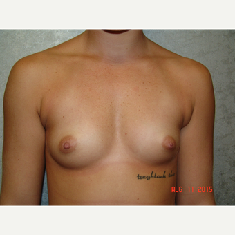18-24 year old woman treated with Breast Augmentation before 2841745