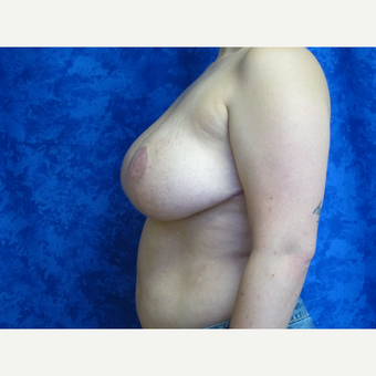 35-44 year old woman treated with Breast Reduction after 3306072