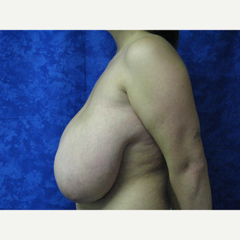 35-44 year old woman treated with Breast Reduction before 3306072