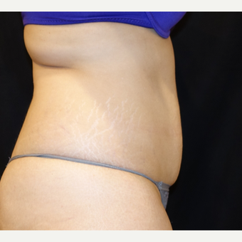 25-34 year old woman treated with Smart Lipo before 3345882