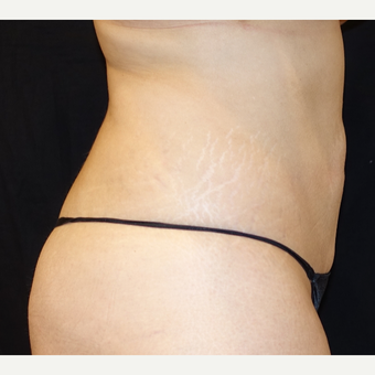 25-34 year old woman treated with Smart Lipo after 3345882