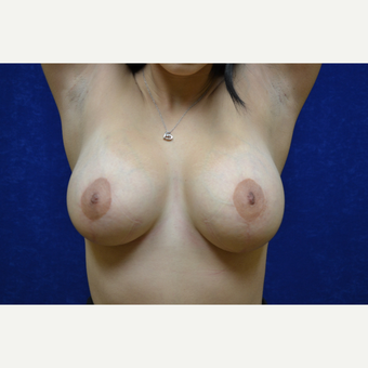 25-34 year old woman treated with Breast Lift with Breast Augmentation after 3663604