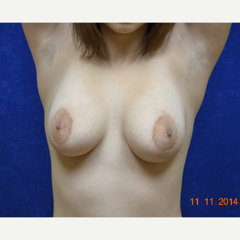 25-34 year old woman treated with Breast Lift with Breast Augmentation before 3663604