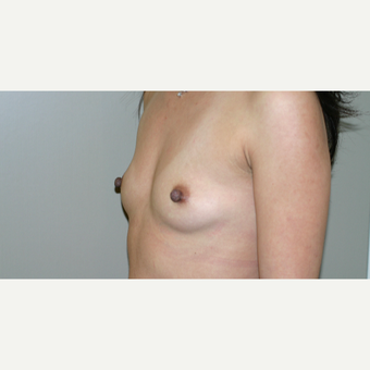 25-34 year old woman treated with Breast Implants before 3154133