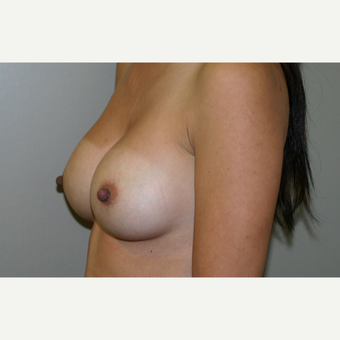 25-34 year old woman treated with Breast Implants after 3154133