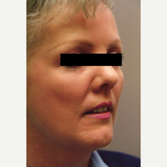 45-54 year old woman treated with Chemical Peel after 3543431