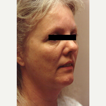 45-54 year old woman treated with Chemical Peel before 3543431