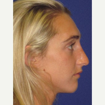 "Non Surgical ""Liquid"" Nose Job after 3383487"
