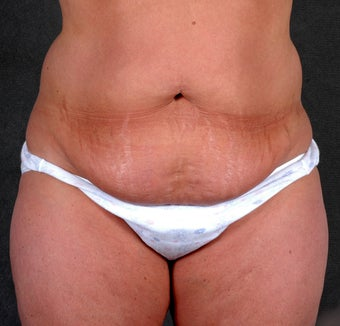 Liposuction of the Hips & Thighs before 1057121