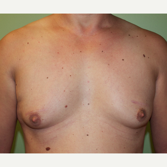 35-44 year old man treated with Male Breast Reduction before 2977762
