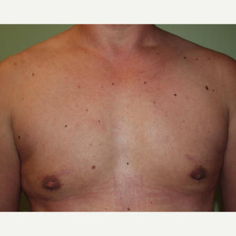 35-44 year old man treated with Male Breast Reduction after 2977762