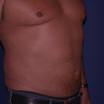 55-64 year old man treated with Liposculpture after 3658441