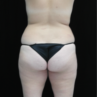 18-24 year old woman treated with Liposculpture before 3371160