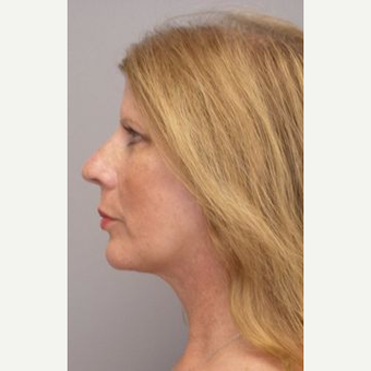 55-64 year old woman treated with Facelift after 3109289