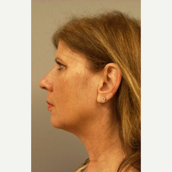 55-64 year old woman treated with Facelift before 3109289