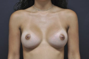 Bilateral breast augmentation after 543270