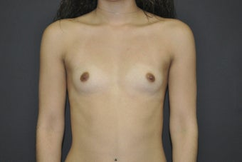 Bilateral breast augmentation before 543270