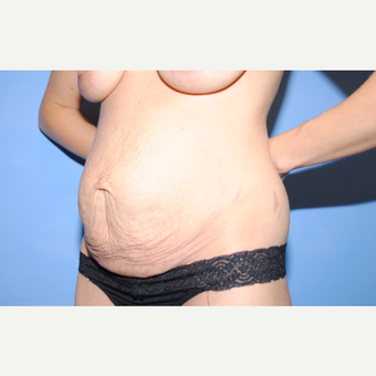 25-34 year old woman treated with Tummy Tuck before 3763332