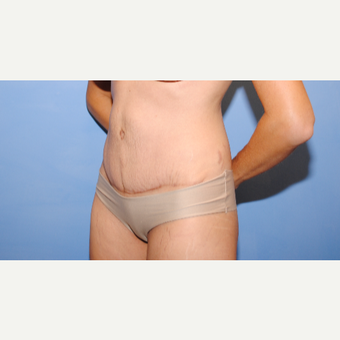 25-34 year old woman treated with Tummy Tuck after 3763332
