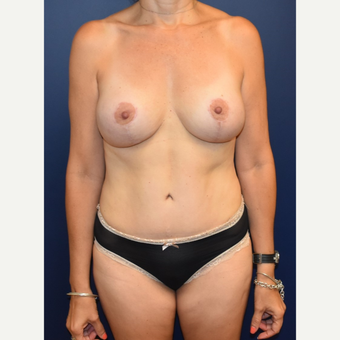 45-54 year old woman treated with Breast Lift with Implants after 3294020