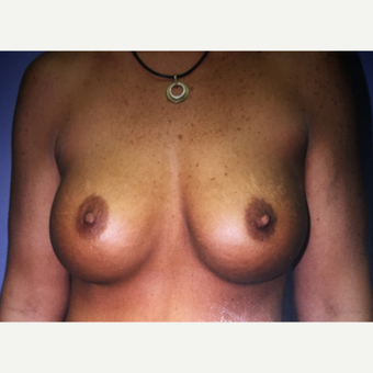 25-34 year old woman treated with Breast Augmentation with Implants after 3333531