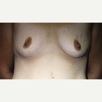 25-34 year old woman treated with Breast Augmentation with Implants before 3333531
