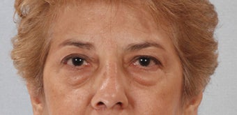 Upper and Lower Eyelid Surgery - Blepharoplasty before 1223129