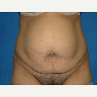 36 year old treated with Tummy Tuck before 3776140