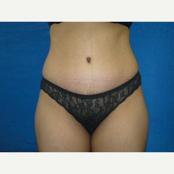 36 year old treated with Tummy Tuck after 3776140