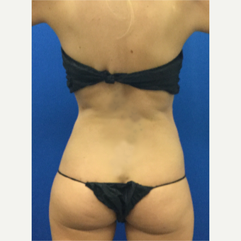 25-34 year old woman treated with Liposculpture after 3696927