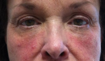 65 Year Old Woman treated with Sculptra after 1028185