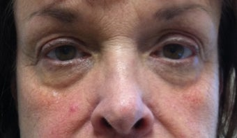 65 Year Old Woman treated with Sculptra before 1028185