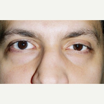 25-34 year old man treated with Ptosis Surgery after 1993548