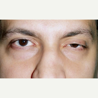 25-34 year old man treated with Ptosis Surgery before 1993548
