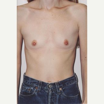 25-34 year old woman treated with Breast Augmentation before 3564502