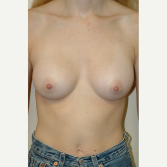 25-34 year old woman treated with Breast Augmentation after 3564502