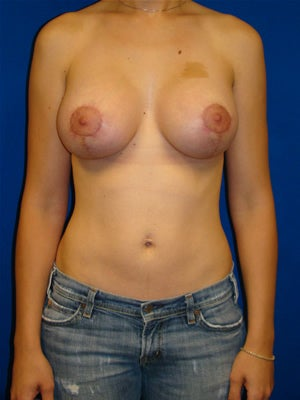 Breast lift and silicone breast implants after 104142