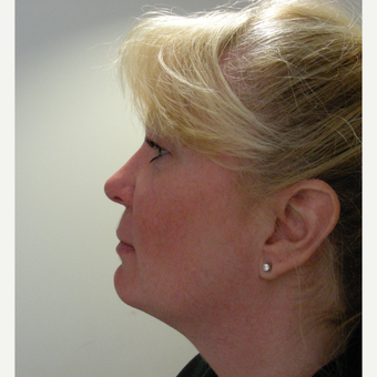 35-44 year old woman treated with Rhinoplasty after 3692029