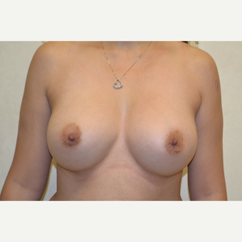 18-24 year old woman treated with Breast Augmentation after 3816389